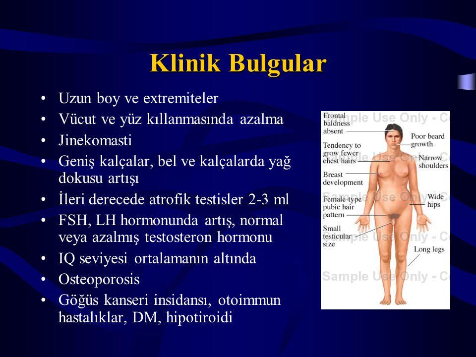 Klinik Bulgular Uzun boy ve extremiteler Vücut ve yüz kıllanmasında azalma Jinekomasti Geniş kalçalar, bel ve kalçalarda yağ dokusu artışı İleri derec