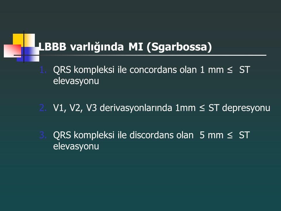 LBBB varlığında MI (Sgarbossa) 1.QRS kompleksi ile concordans olan 1 mm ≤ ST elevasyonu 2.V1, V2, V3 derivasyonlarında 1mm ≤ ST depresyonu 3.QRS kompl