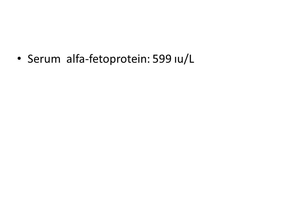 Serum alfa-fetoprotein: 599 ıu/L