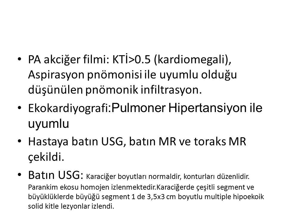 PA akciğer filmi: KTİ>0.5 (kardiomegali), Aspirasyon pnömonisi ile uyumlu olduğu düşünülen pnömonik infiltrasyon. Ekokardiyografi :Pulmoner Hipertansi