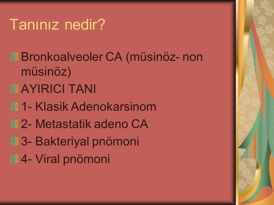 Tanınız nedir? Bronkoalveoler CA (müsinöz- non müsinöz) AYIRICI TANI 1- Klasik Adenokarsinom 2- Metastatik adeno CA 3- Bakteriyal pnömoni 4- Viral pnö