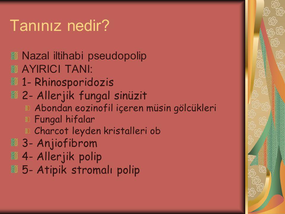 Tanınız nedir? Nazal iltihabi pseudopolip AYIRICI TANI: 1- Rhinosporidozis 2- Allerjik fungal sinüzit Abondan eozinofil içeren müsin gölcükleri Fungal