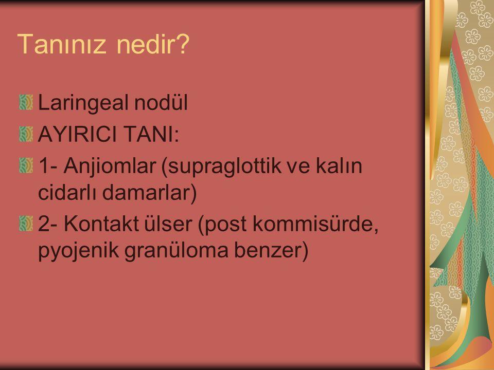Tanınız nedir? Laringeal nodül AYIRICI TANI: 1- Anjiomlar (supraglottik ve kalın cidarlı damarlar) 2- Kontakt ülser (post kommisürde, pyojenik granülo