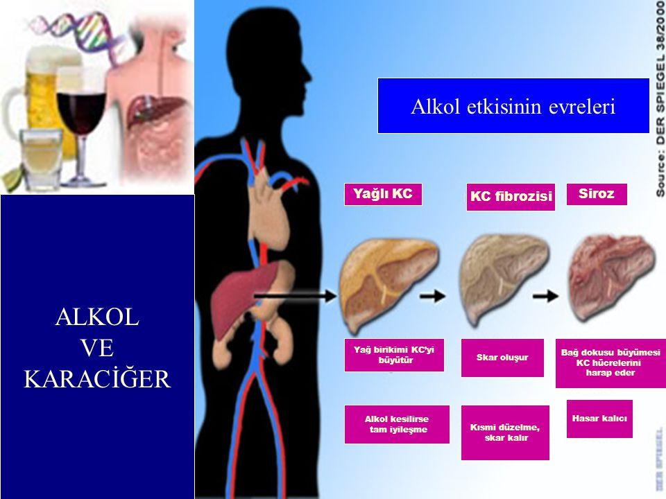 Yağ birikimi KC'yi büyütür Skar oluşur Bağ dokusu büyümesi KC hücrelerini harap eder Alkol kesilirse tam iyileşme Kısmi düzelme, skar kalır Hasar kalı