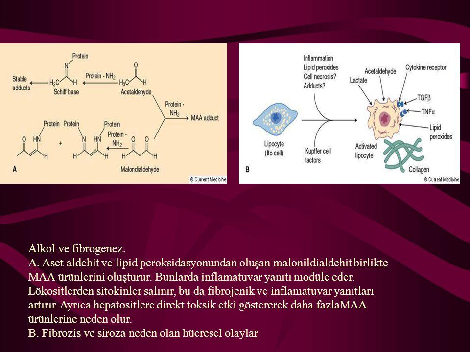 Alkol ve fibrogenez. A. Aset aldehit ve lipid peroksidasyonundan oluşan malonildialdehit birlikte MAA ürünlerini oluşturur. Bunlarda inflamatuvar yanı