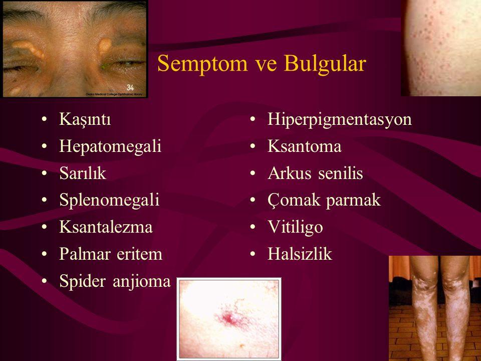 Semptom ve Bulgular Kaşıntı Hepatomegali Sarılık Splenomegali Ksantalezma Palmar eritem Spider anjioma Hiperpigmentasyon Ksantoma Arkus senilis Çomak