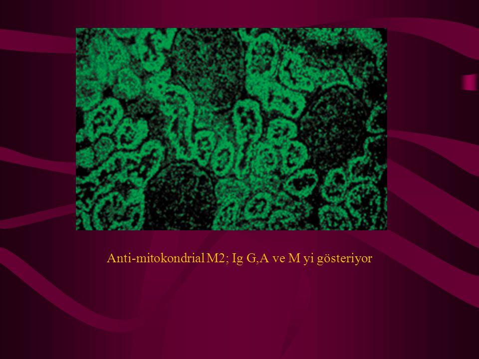 Anti-mitokondrial M2; Ig G,A ve M yi gösteriyor