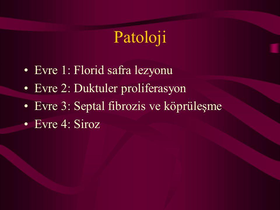 Patoloji Evre 1: Florid safra lezyonu Evre 2: Duktuler proliferasyon Evre 3: Septal fibrozis ve köprüleşme Evre 4: Siroz