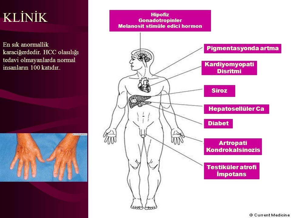 KLİNİK En sık anormallik karaciğerdedir. HCC olasılığı tedavi olmayanlarda normal insanların 100 katıdır.. Hipofiz Gonadotropinler Melanosit stimüle e
