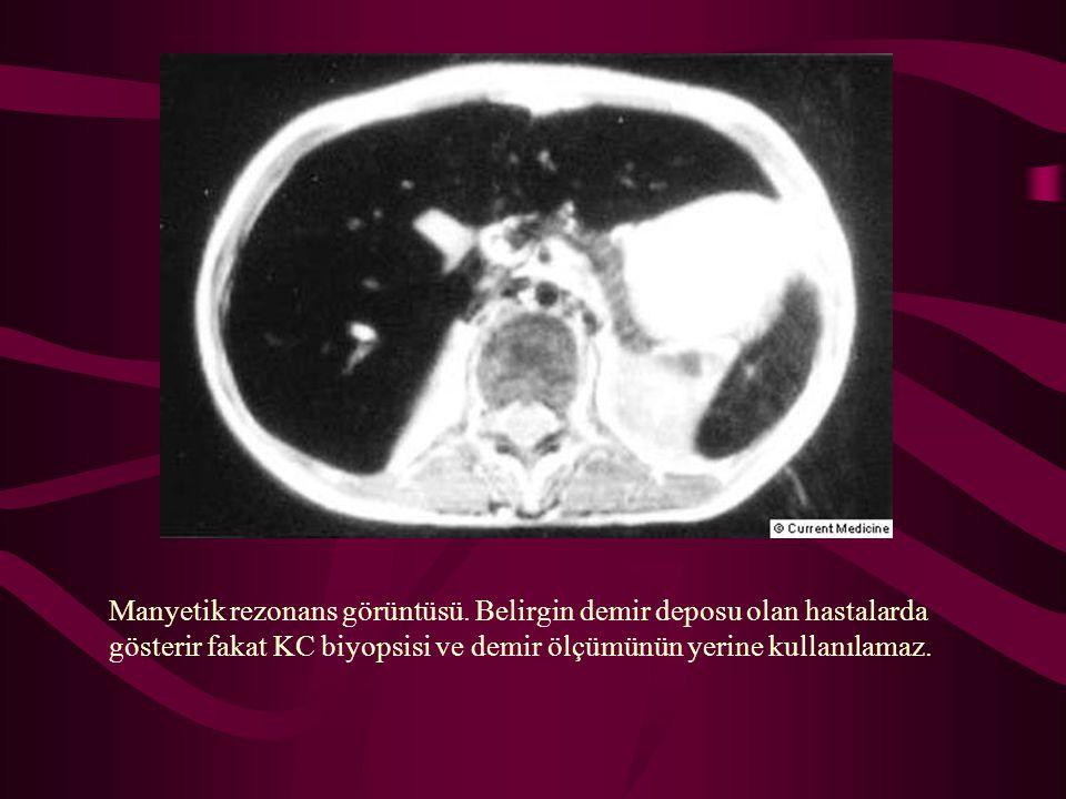 Manyetik rezonans görüntüsü. Belirgin demir deposu olan hastalarda gösterir fakat KC biyopsisi ve demir ölçümünün yerine kullanılamaz.