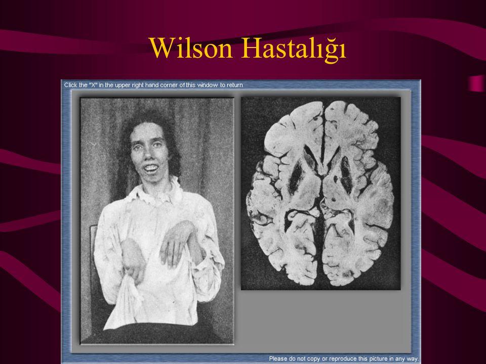 Wilson Hastalığı