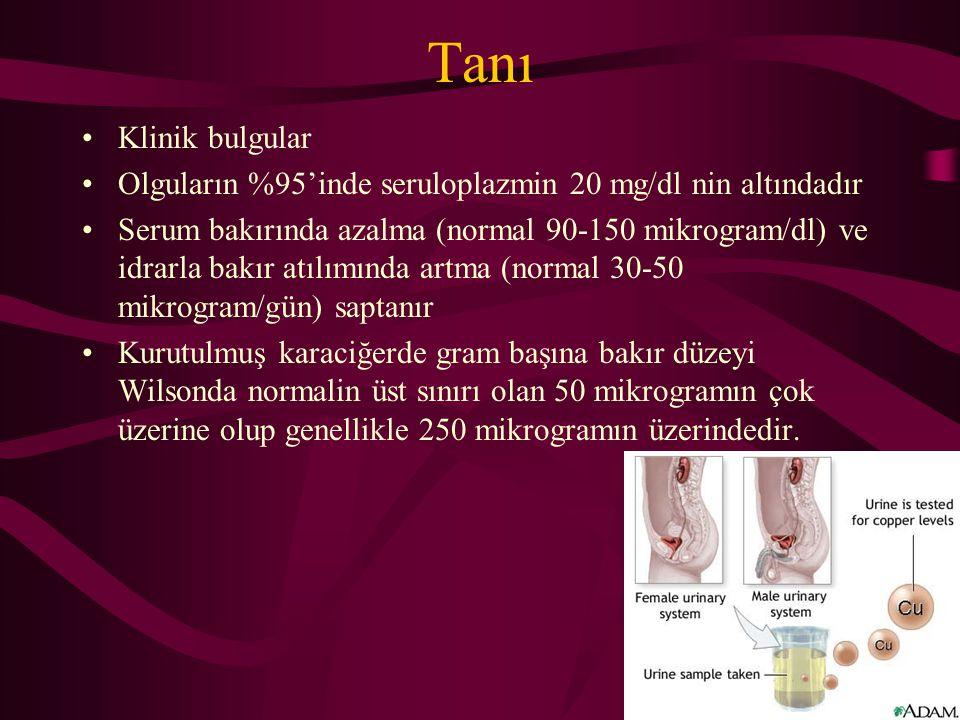 Tanı Klinik bulgular Olguların %95'inde seruloplazmin 20 mg/dl nin altındadır Serum bakırında azalma (normal 90-150 mikrogram/dl) ve idrarla bakır atı