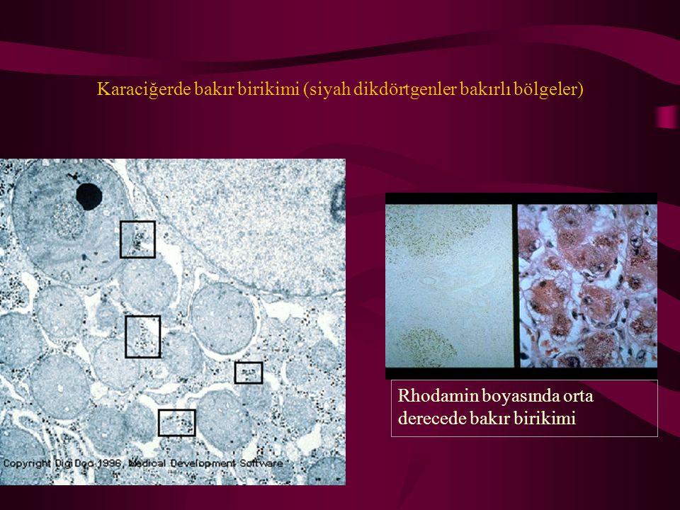 Karaciğerde bakır birikimi (siyah dikdörtgenler bakırlı bölgeler) Rhodamin boyasında orta derecede bakır birikimi