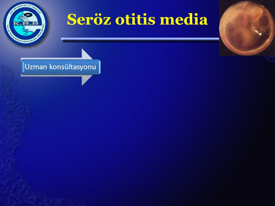Seröz otitis media Uzman konsültasyonu