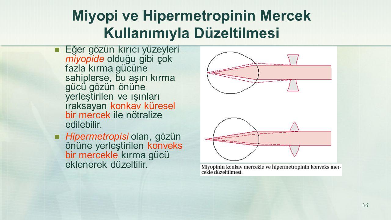 Miyopi ve Hipermetropinin Mercek Kullanımıyla Düzeltilmesi Eğer gözün kırıcı yüzeyleri miyopide olduğu gibi çok fazla kırma gücüne sahiplerse, bu aşır