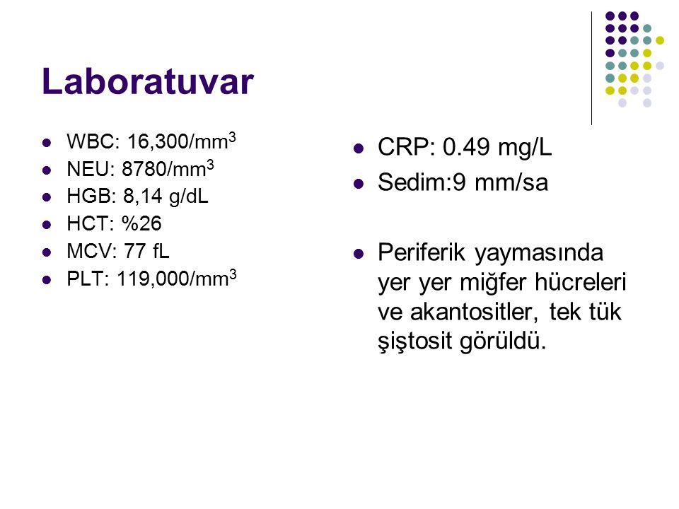 Laboratuvar WBC: 16,300/mm 3 NEU: 8780/mm 3 HGB: 8,14 g/dL HCT: %26 MCV: 77 fL PLT: 119,000/mm 3 CRP: 0.49 mg/L Sedim:9 mm/sa Periferik yaymasında yer