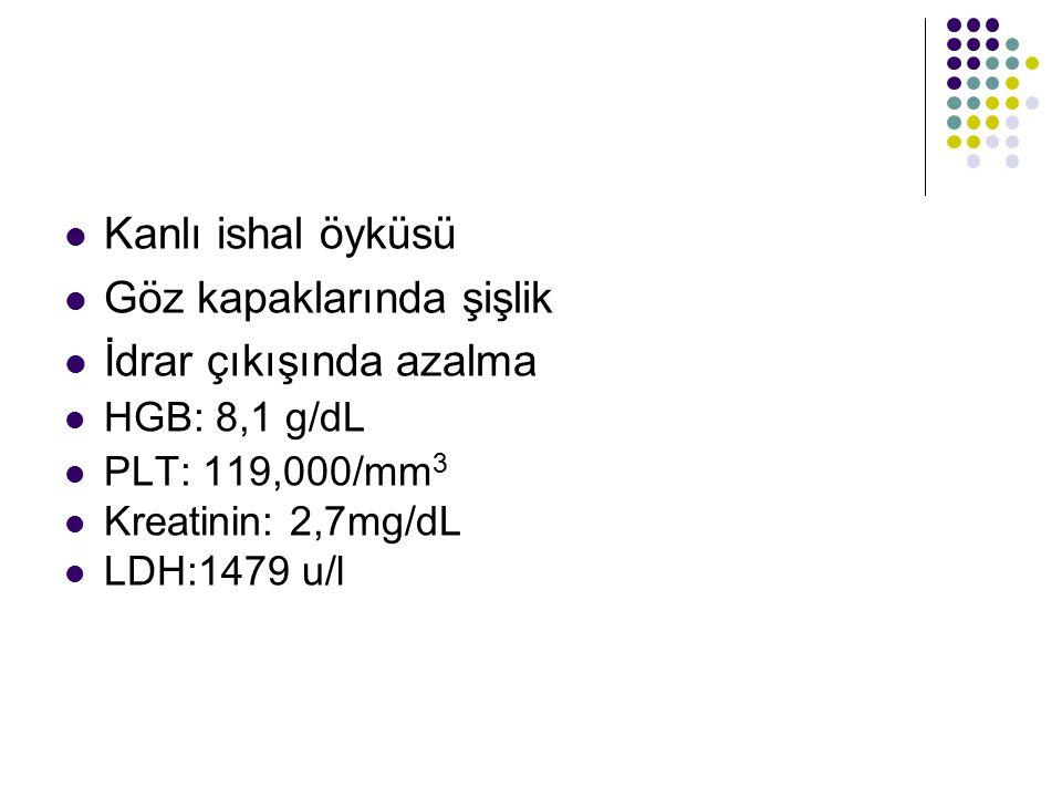 Kanlı ishal öyküsü Göz kapaklarında şişlik İdrar çıkışında azalma HGB: 8,1 g/dL PLT: 119,000/mm 3 Kreatinin: 2,7mg/dL LDH:1479 u/l