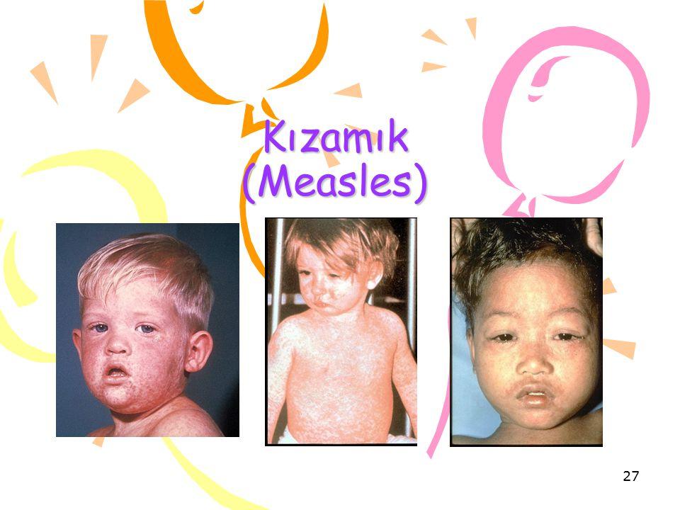 Kızamık (Measles) 27