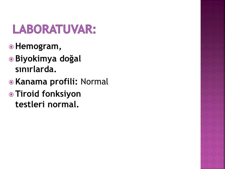  Hemogram,  Biyokimya doğal sınırlarda.  Kanama profili: Normal  Tiroid fonksiyon testleri normal.