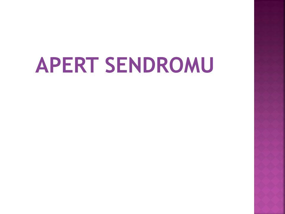 APERT SENDROMU