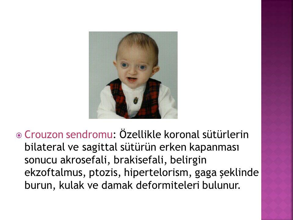  Crouzon sendromu: Özellikle koronal sütürlerin bilateral ve sagittal sütürün erken kapanması sonucu akrosefali, brakisefali, belirgin ekzoftalmus, p