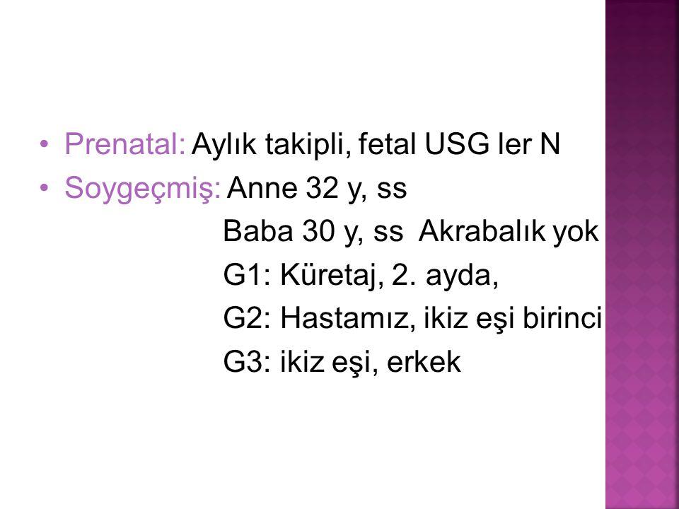 Prenatal: Aylık takipli, fetal USG ler N Soygeçmiş: Anne 32 y, ss Baba 30 y, ss Akrabalık yok G1: Küretaj, 2. ayda, G2: Hastamız, ikiz eşi birinci G3: