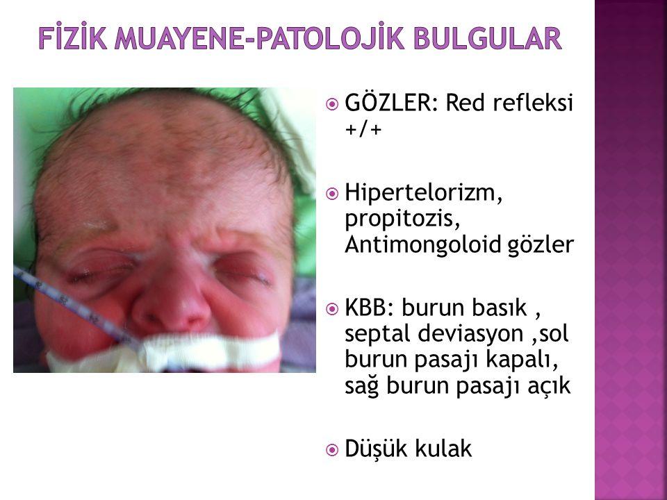  GÖZLER: Red refleksi +/+  Hipertelorizm, propitozis, Antimongoloid gözler  KBB: burun basık, septal deviasyon,sol burun pasajı kapalı, sağ burun p