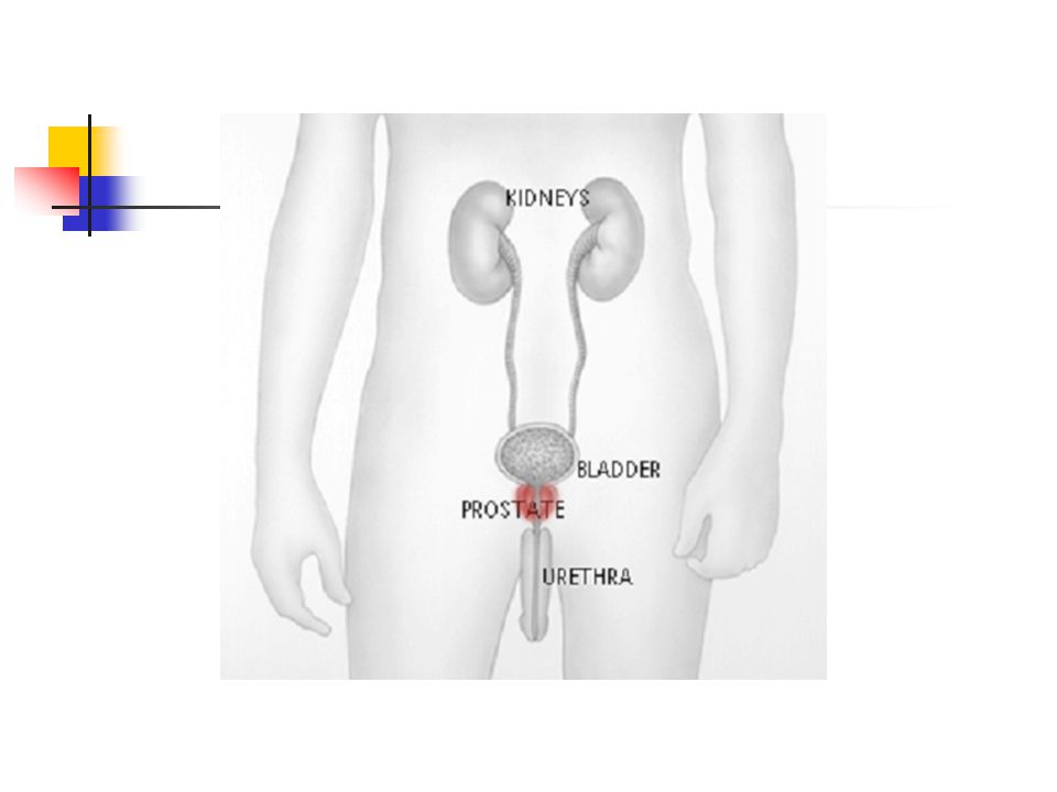 ETYOLOJİ Histopatolojik olarak BPH epitelyal ve stromal hücrelerin prostatın periüretral kısmında çoğalmasıyla karakterizedir.