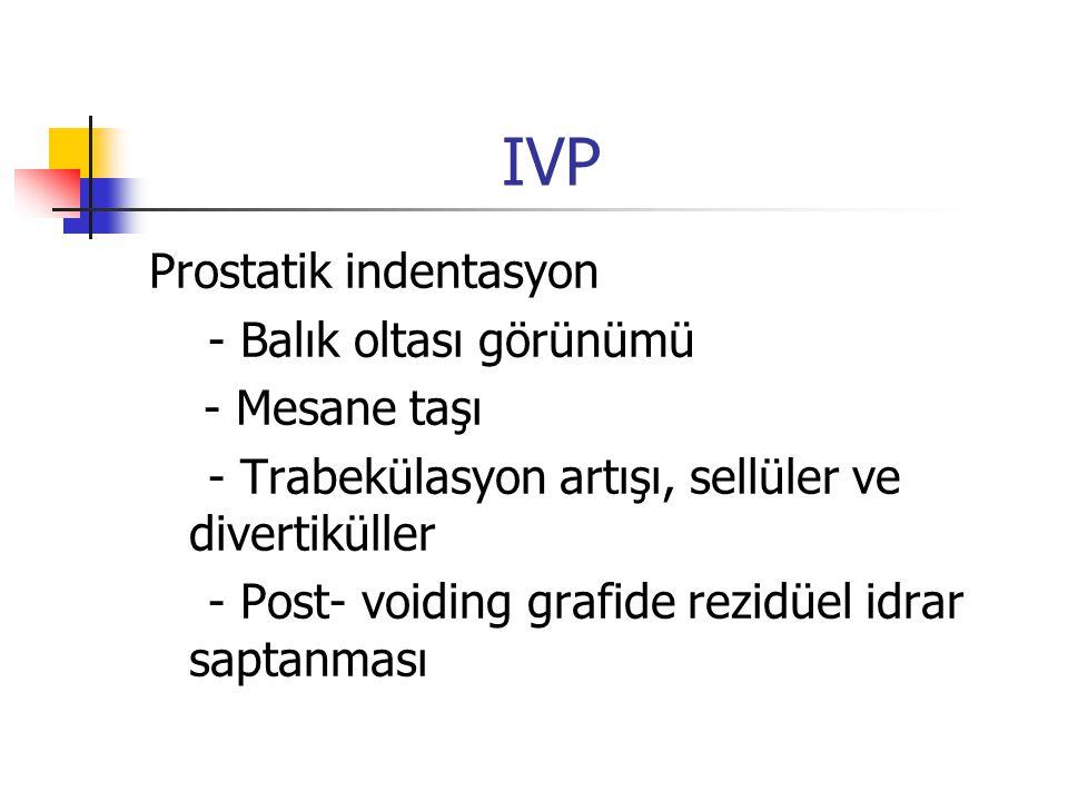 IVP Prostatik indentasyon - Balık oltası görünümü - Mesane taşı - Trabekülasyon artışı, sellüler ve divertiküller - Post- voiding grafide rezidüel idr