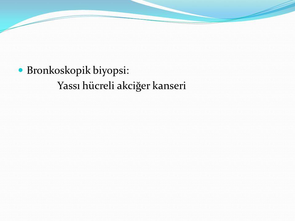 Bronkoskopik biyopsi: Yassı hücreli akciğer kanseri