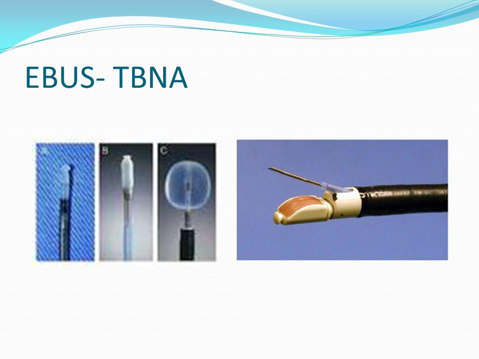 EBUS- TBNA