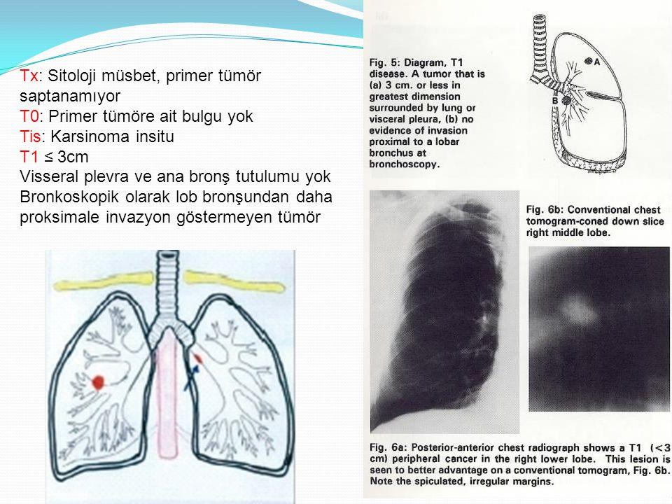 Tx: Sitoloji müsbet, primer tümör saptanamıyor T0: Primer tümöre ait bulgu yok Tis: Karsinoma insitu T1 ≤ 3cm Visseral plevra ve ana bronş tutulumu yok Bronkoskopik olarak lob bronşundan daha proksimale invazyon göstermeyen tümör