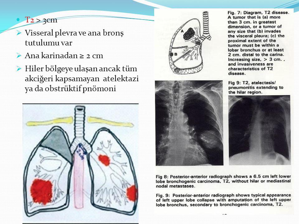 T2 > 3cm  Visseral plevra ve ana bronş tutulumu var  Ana karinadan ≥ 2 cm  Hiler bölgeye ulaşan ancak tüm akciğeri kapsamayan atelektazi ya da obstrüktif pnömoni
