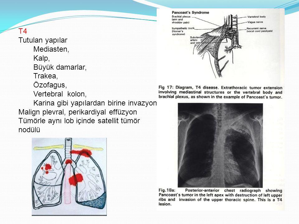 T4 Tutulan yapılar Mediasten, Kalp, Büyük damarlar, Trakea, Özofagus, Vertebral kolon, Karina gibi yapılardan birine invazyon Malign plevral, perikardiyal effüzyon Tümörle aynı lob içinde satellit tümör nodülü