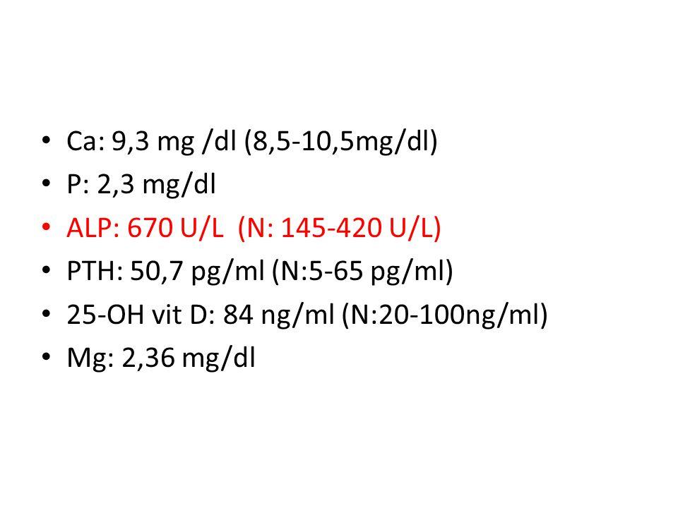 Ca: 9,3 mg /dl (8,5-10,5mg/dl) P: 2,3 mg/dl ALP: 670 U/L (N: 145-420 U/L) PTH: 50,7 pg/ml (N:5-65 pg/ml) 25-OH vit D: 84 ng/ml (N:20-100ng/ml) Mg: 2,36 mg/dl
