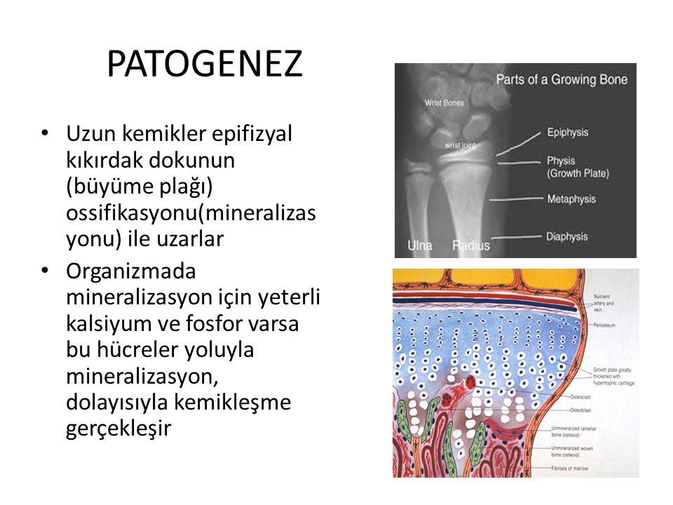 PATOGENEZ Uzun kemikler epifizyal kıkırdak dokunun (büyüme plağı) ossifikasyonu(mineralizas yonu) ile uzarlar Organizmada mineralizasyon için yeterli kalsiyum ve fosfor varsa bu hücreler yoluyla mineralizasyon, dolayısıyla kemikleşme gerçekleşir