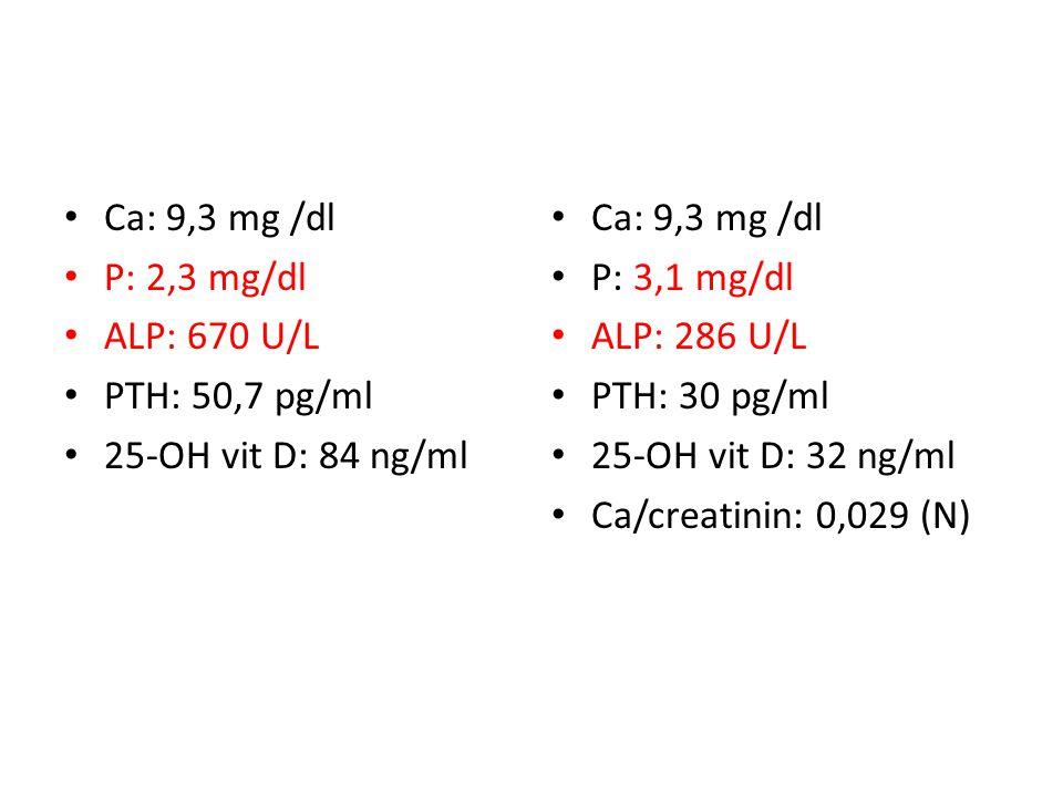 Ca: 9,3 mg /dl P: 3,1 mg/dl ALP: 286 U/L PTH: 30 pg/ml 25-OH vit D: 32 ng/ml Ca/creatinin: 0,029 (N) Ca: 9,3 mg /dl P: 2,3 mg/dl ALP: 670 U/L PTH: 50,7 pg/ml 25-OH vit D: 84 ng/ml