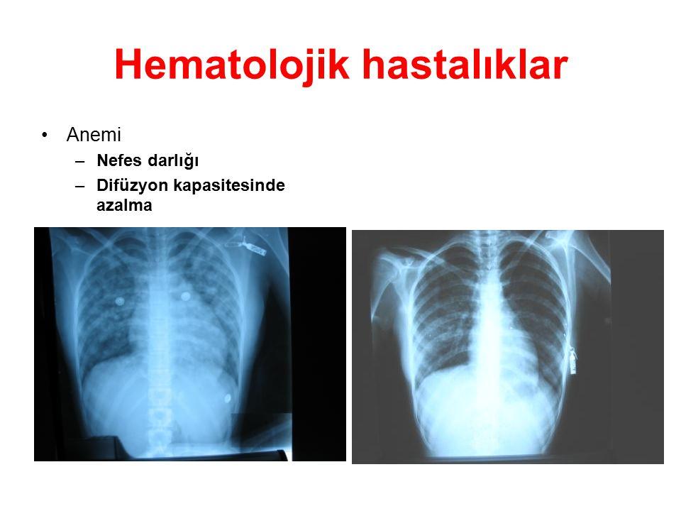 Hematolojik hastalıklar Anemi –Nefes darlığı –Difüzyon kapasitesinde azalma