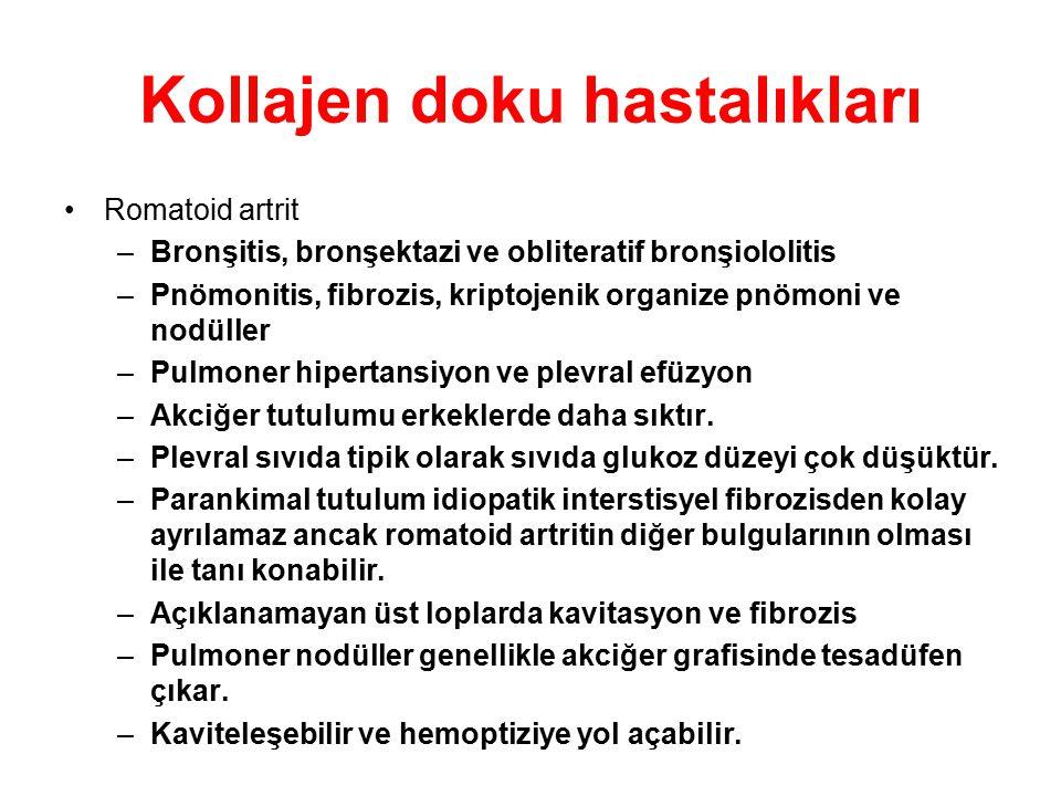 Kollajen doku hastalıkları Romatoid artrit –Bronşitis, bronşektazi ve obliteratif bronşiololitis –Pnömonitis, fibrozis, kriptojenik organize pnömoni v