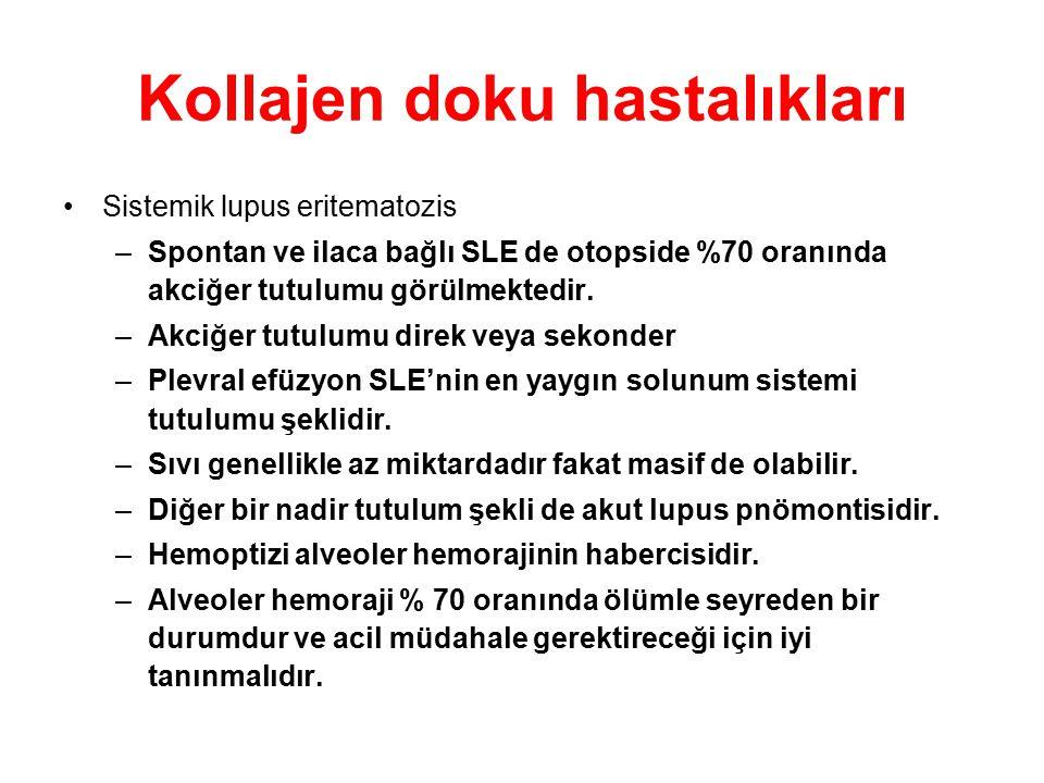 Kollajen doku hastalıkları Sistemik lupus eritematozis –Spontan ve ilaca bağlı SLE de otopside %70 oranında akciğer tutulumu görülmektedir. –Akciğer t
