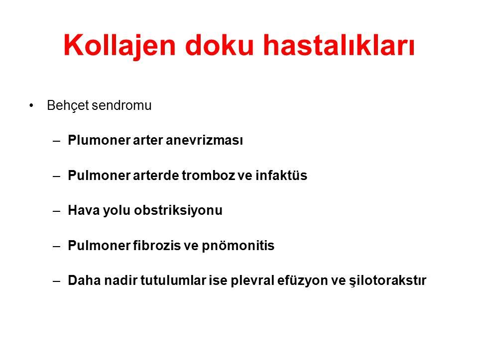 Kollajen doku hastalıkları Behçet sendromu –Plumoner arter anevrizması –Pulmoner arterde tromboz ve infaktüs –Hava yolu obstriksiyonu –Pulmoner fibroz