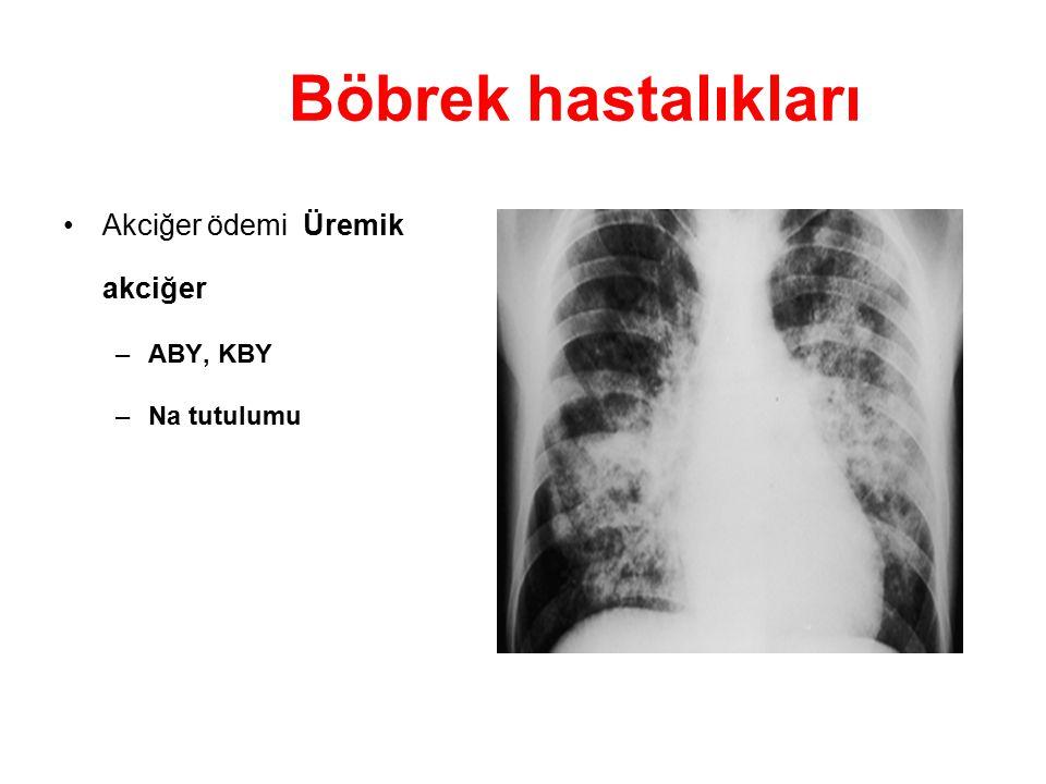 Böbrek hastalıkları Akciğer ödemi Üremik akciğer –ABY, KBY –Na tutulumu
