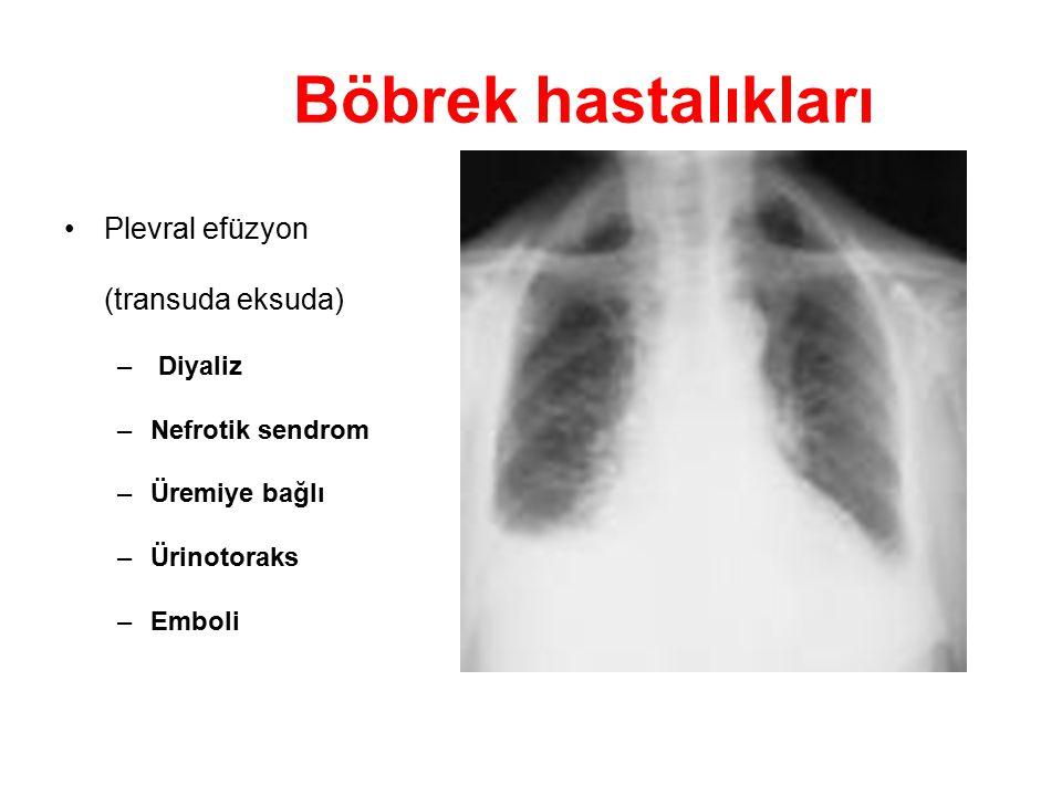 Böbrek hastalıkları Plevral efüzyon (transuda eksuda) – Diyaliz –Nefrotik sendrom –Üremiye bağlı –Ürinotoraks –Emboli