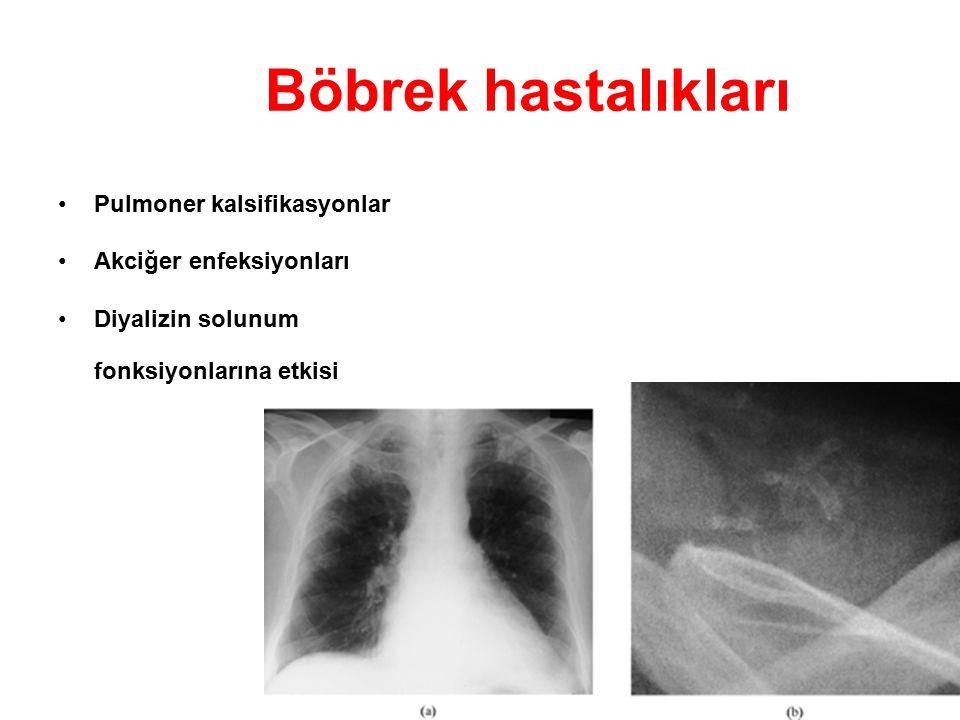 Böbrek hastalıkları Pulmoner kalsifikasyonlar Akciğer enfeksiyonları Diyalizin solunum fonksiyonlarına etkisi