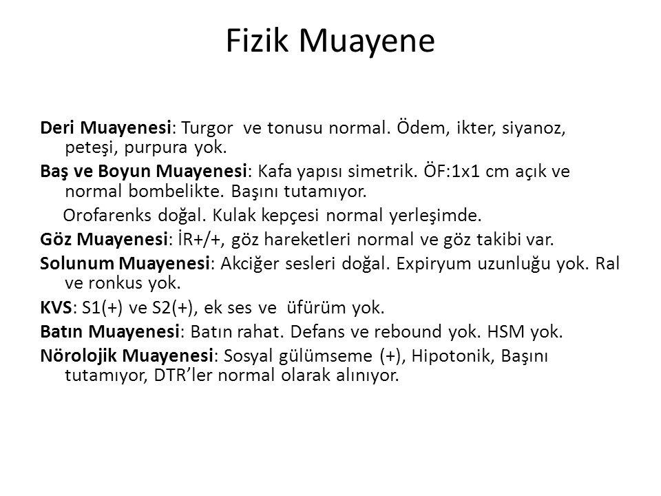 Fizik Muayene Deri Muayenesi: Turgor ve tonusu normal. Ödem, ikter, siyanoz, peteşi, purpura yok. Baş ve Boyun Muayenesi: Kafa yapısı simetrik. ÖF:1x1