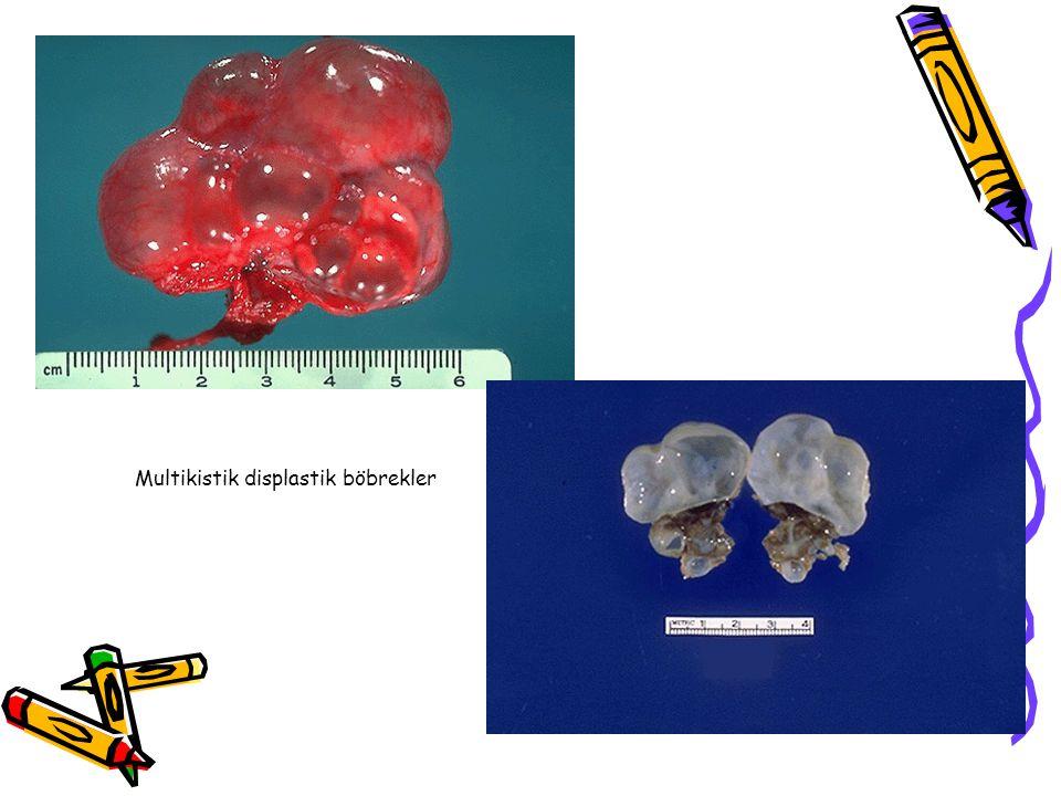Multikistik displastik böbrekler