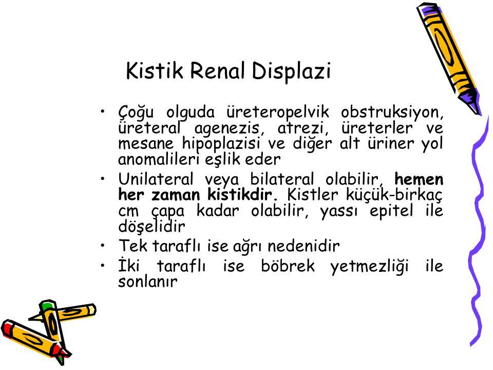 Kistik Renal Displazi Çoğu olguda üreteropelvik obstruksiyon, üreteral agenezis, atrezi, üreterler ve mesane hipoplazisi ve diğer alt üriner yol anomalileri eşlik eder Unilateral veya bilateral olabilir, hemen her zaman kistikdir.