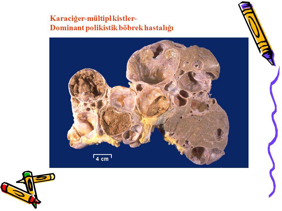 Karaciğer-mültipl kistler- Dominant polikistik böbrek hastalığı
