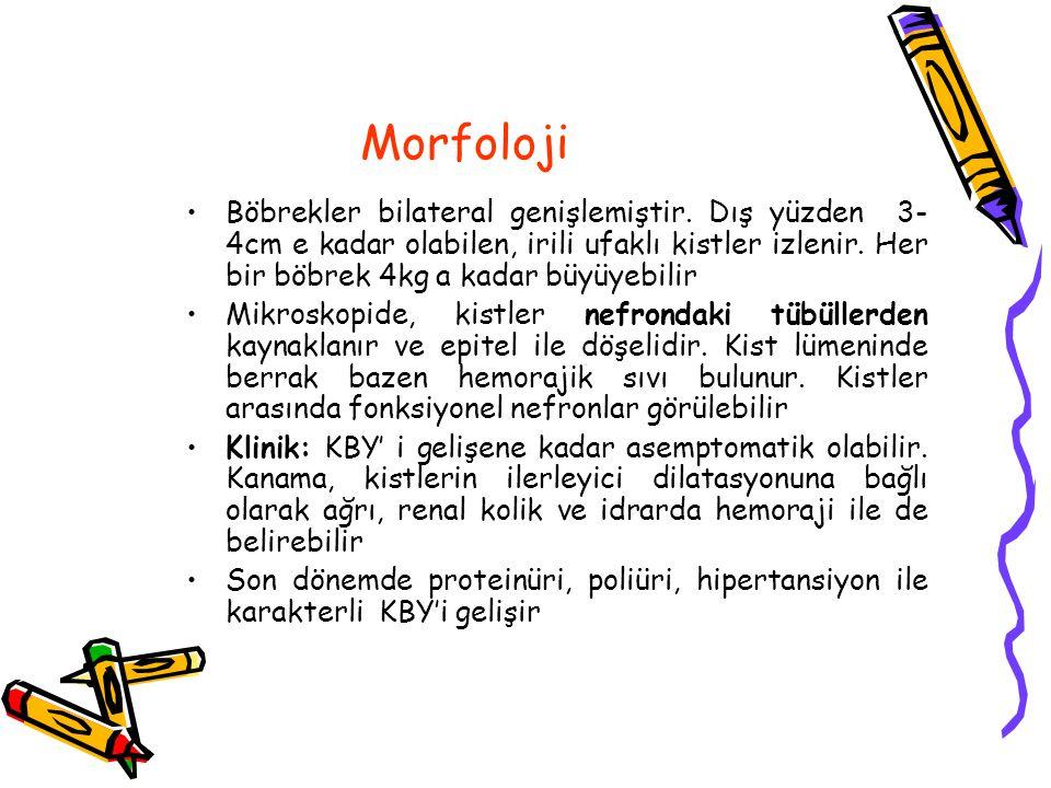 Morfoloji Böbrekler bilateral genişlemiştir.