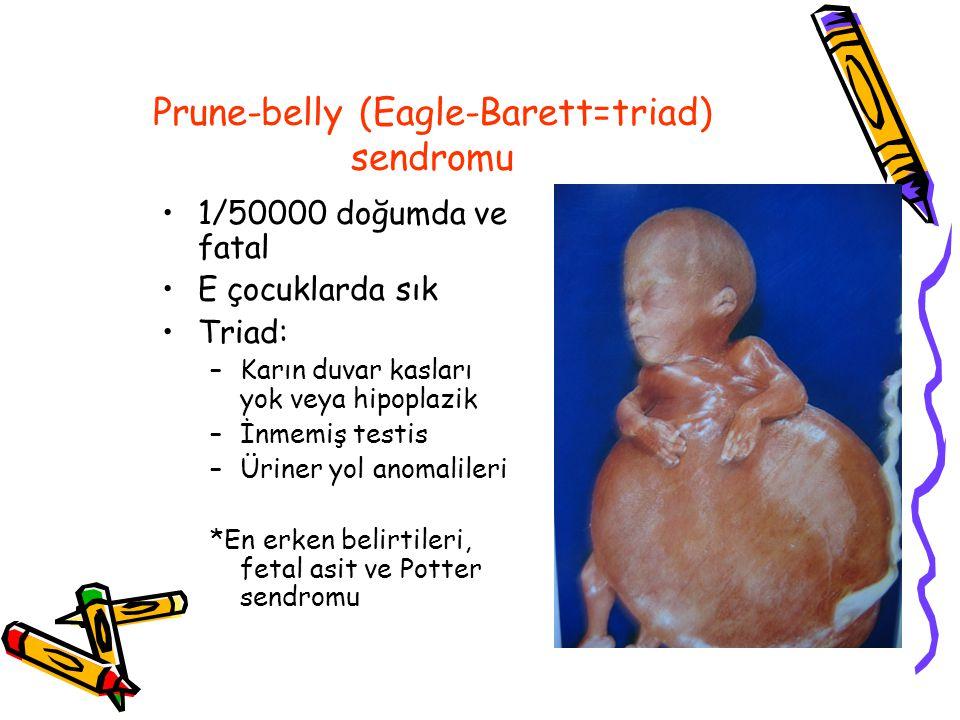 Prune-belly (Eagle-Barett=triad) sendromu 1/50000 doğumda ve fatal E çocuklarda sık Triad: –Karın duvar kasları yok veya hipoplazik –İnmemiş testis –Üriner yol anomalileri *En erken belirtileri, fetal asit ve Potter sendromu
